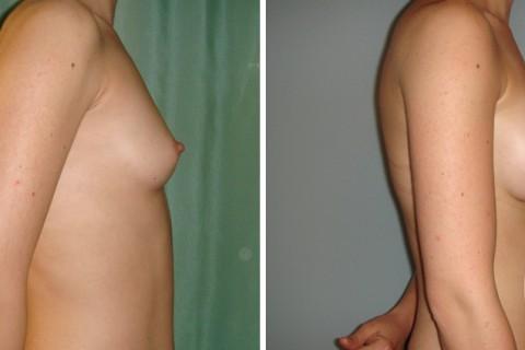 Breast Augmentation R – Case 31 B