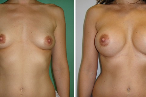 Tuberous breast – Case 37 A