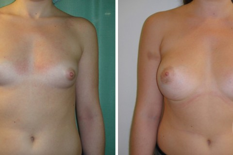 Breast Augmentation R — Case 32 A