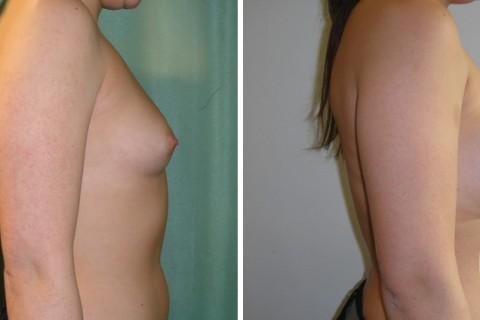 Breast Augmentation R – Case 32 B