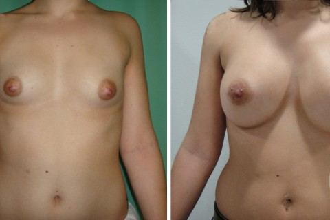 Tuberous breast – Case 38 A