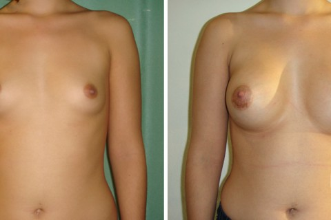 Breast Augmentation R – Case 33 A