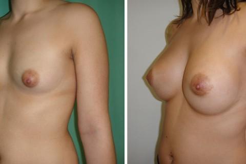 Tuberous breast – Case 38 B