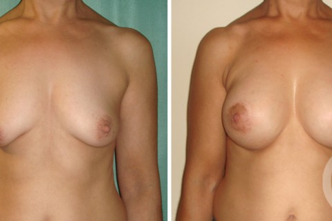Tuberous breast – Case 4 A