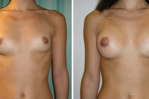 Breast Augmentation A – Case 2 A