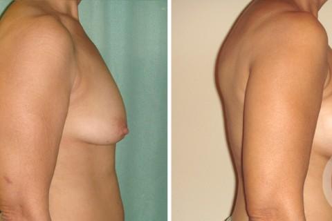 Tuberous breast – Case 4 B