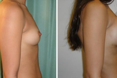 Breast Augmentation A – Case 2 B