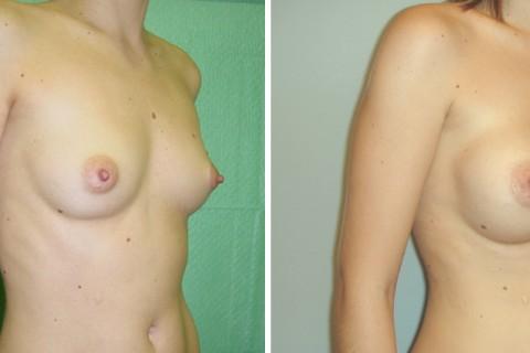 Breast Augmentation R — Case 2 B