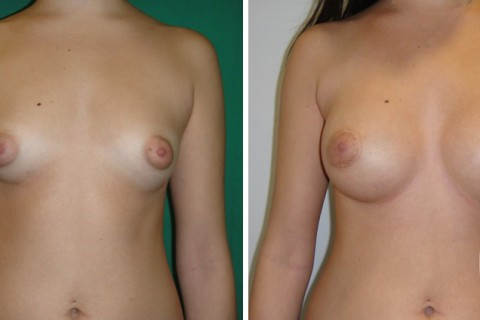 Tuberous breast — Case 39 A