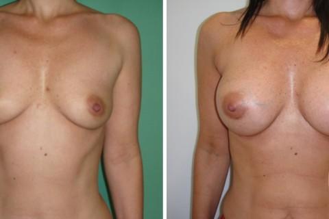 Breast Augmentation R – Case 34 A