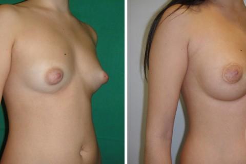 Tuberous breast – Case 39 B