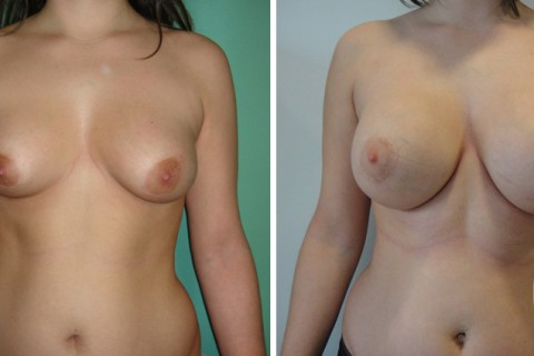 Tuberous breast – Case 40 A