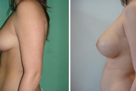 Tuberous breast – Case 40 B