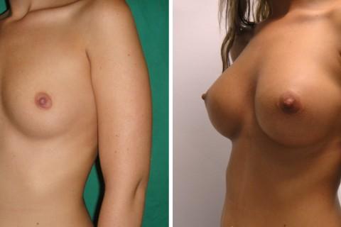Breast Augmentation R – Case 35 B