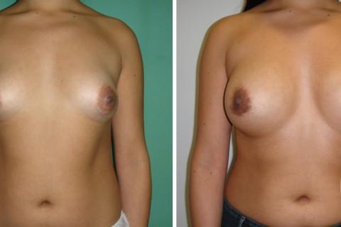 Tuberous breast — Case 41