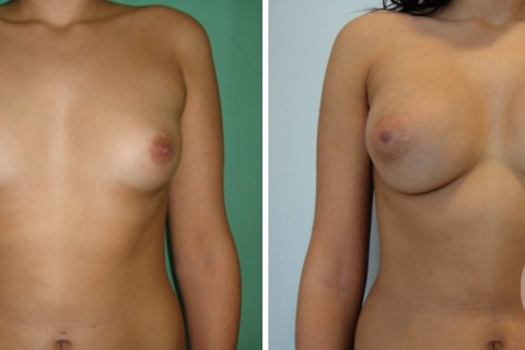 Breast Augmentation R – Case 36