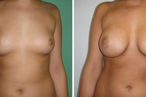 Breast Augmentation R – Case 37 A