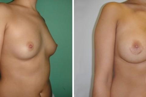 Breast Augmentation R – Case 37 B