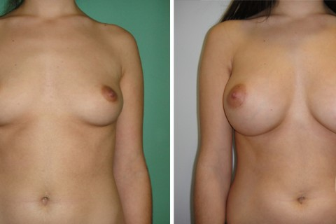 Breast Augmentation R – Case 38 A