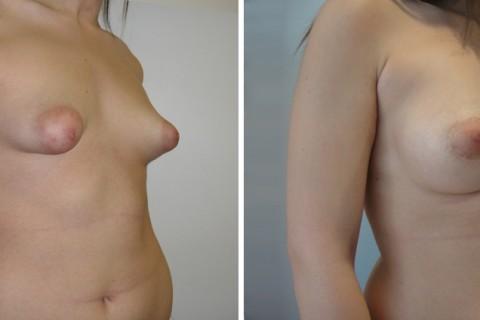 Tuberous breast – Case 43 B