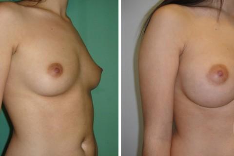 Breast Augmentation R – Case 38 B