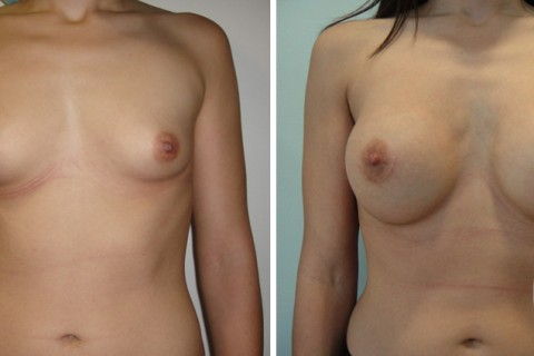 Breast Augmentation R – Case 39 A