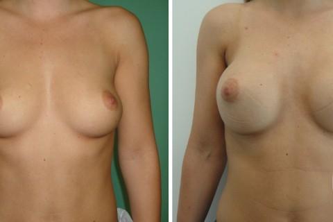 Breast Augmentation R – Case 40 A