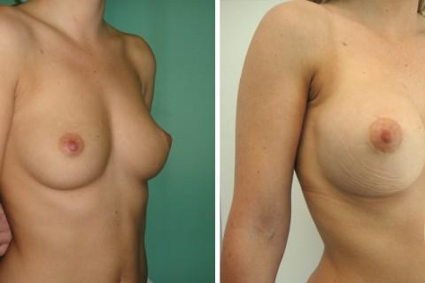 Breast Augmentation R — Case 40 B