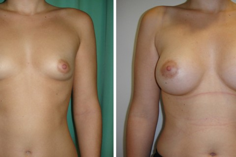 Tuberous breast – Case 46 A