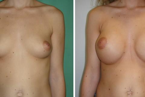 Breast Augmentation R – Case 41 A