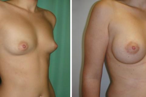 Tuberous breast – Case 46 B