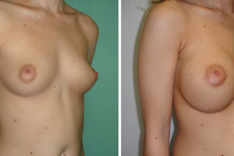 Breast Augmentation R – Case 41 B