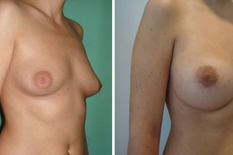 Tuberous breast – Case 47 B