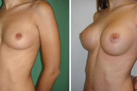 Breast Augmentation R – Case 42 B