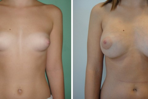 Tuberous breast – Case 48 A