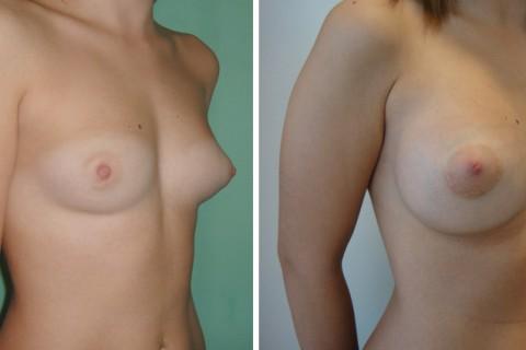 Tuberous breast — Case 48 B