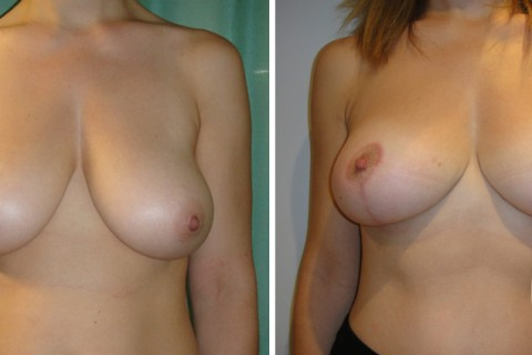 Breast lift – Case 4 A
