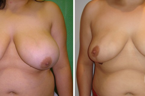 Breast Reduction – Case 4