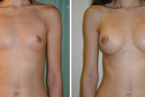 Breast Augmentation A — Case 3