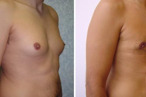 Gynecomastia – Case 3