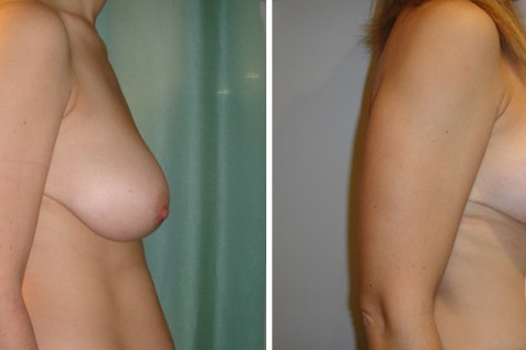 Breast lift – Case 4 B