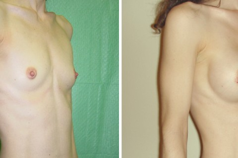 Breast Augmentation R – Case 3 B
