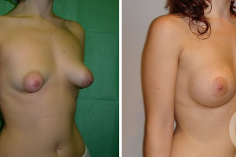Tuberous breast – Case 6 B