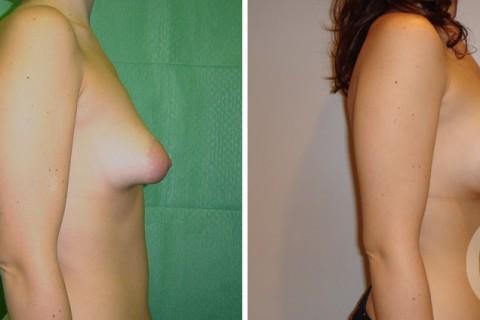 Tuberous breast – Case 6 C