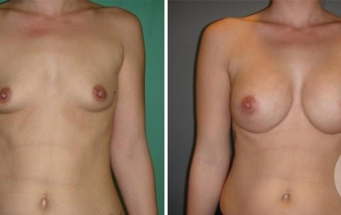 Breast Augmentation R – Case 44 A