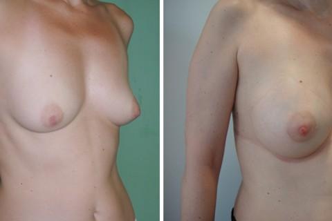 Tuberous breast – Case 49 B