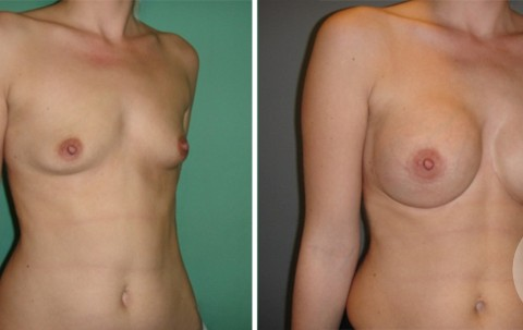 Breast Augmentation R – Case 44 B