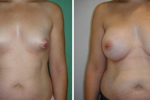 Tuberous breast – Case 50 A