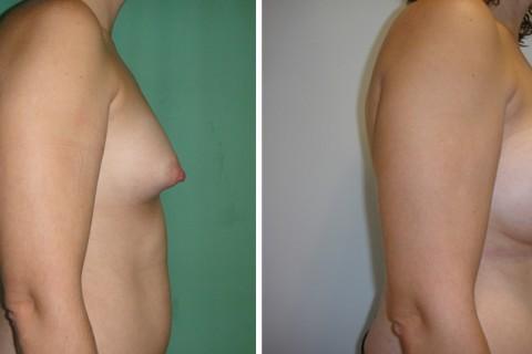 Tuberous breast — Case 50 B