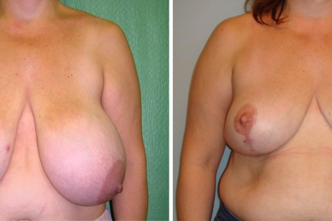 Breast Reduction – Case 5